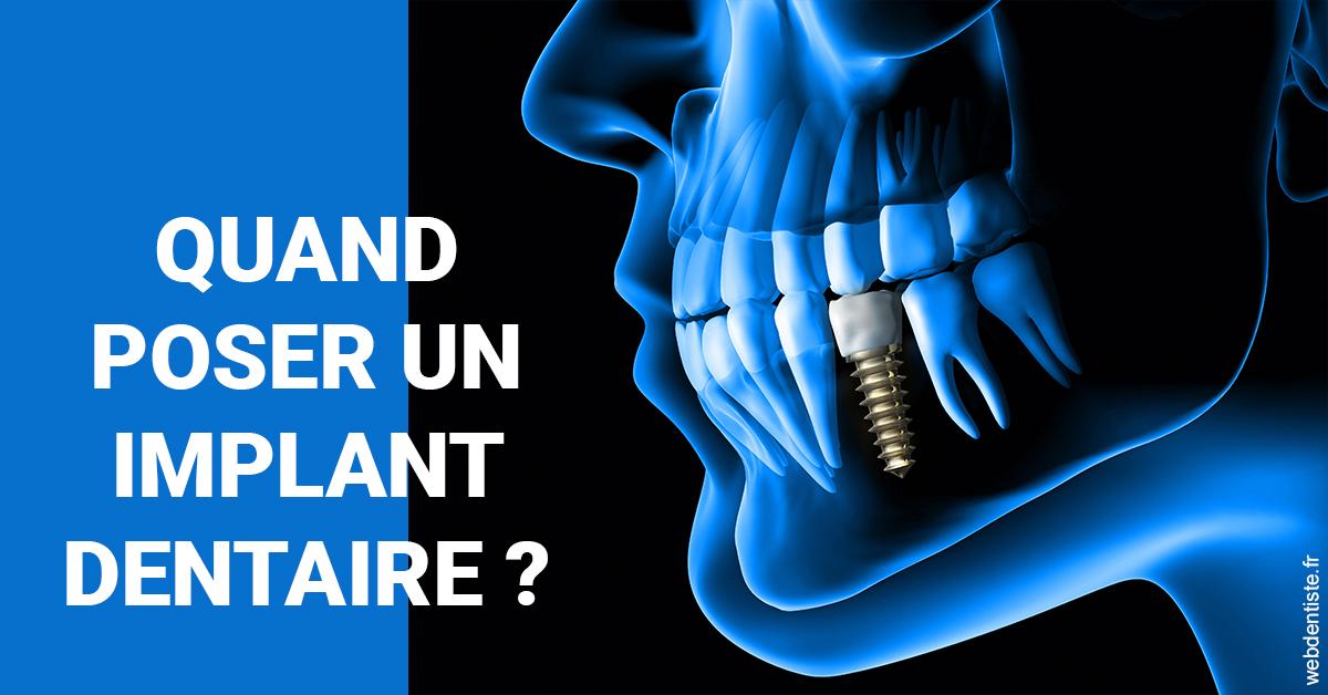 https://dr-patrice-gasser.chirurgiens-dentistes.fr/Les implants 1