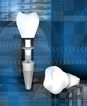 Les implants